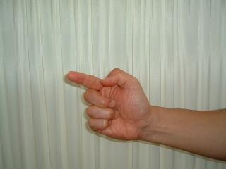 ばね指 だんぱつ指