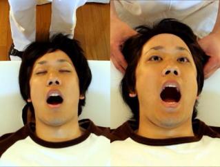 顎関節 症例